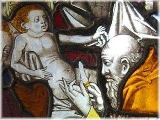 Ritual circumcision